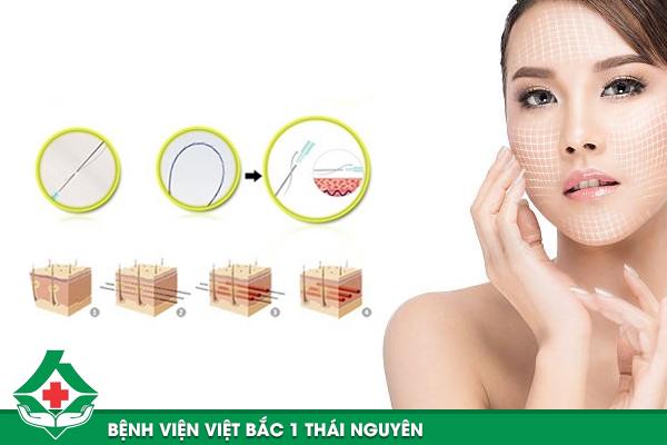 Mô phỏng kỹ thuật căng chỉ da mặt tại Bệnh viện Việt Bắc 1
