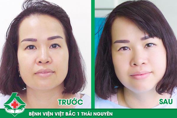 Kết quả nhìn thấy ngay sau khi căng da vùng mặt