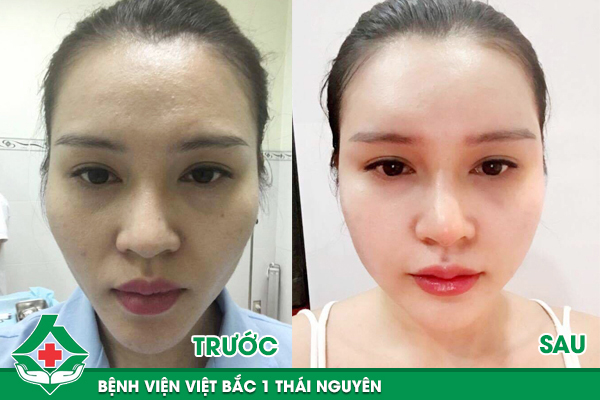 Trước và sau khi cấy mỡ tạo hình khuôn mặt tại Bệnh viện Việt Bắc 1