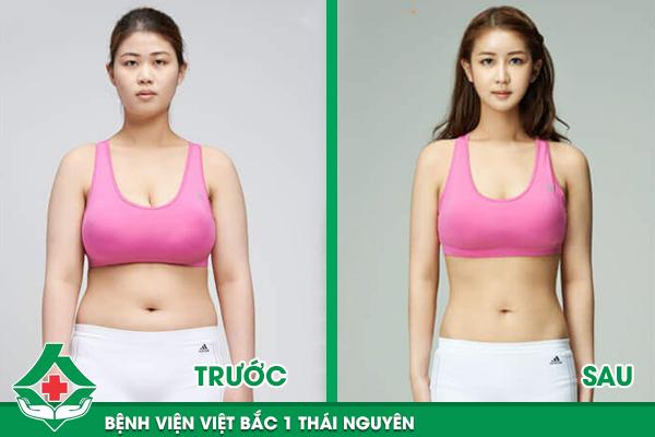 Trước và sau khi hút mỡ vùng bụng và đùi tại Bệnh viện Việt Bắc 1