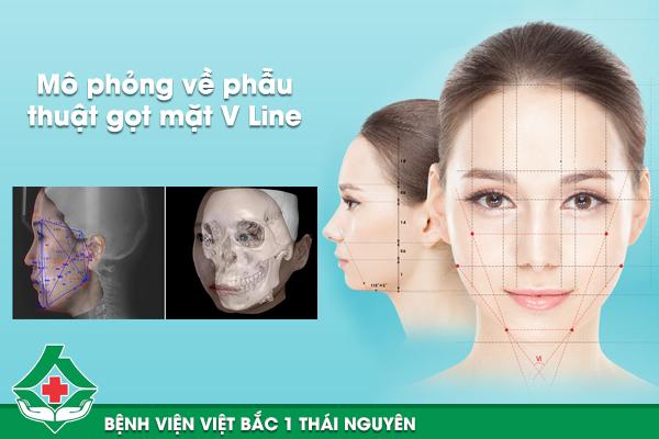 Mô phỏng về phẫu thuật gọt mặt V Line