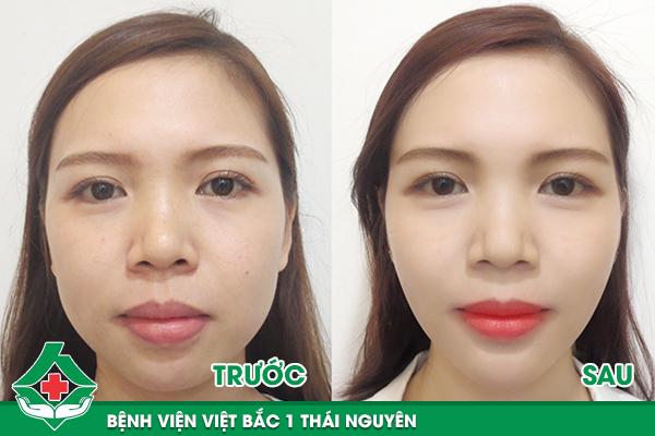 Hình ảnh khác biệt trước và sau khi gọt mặt V Line