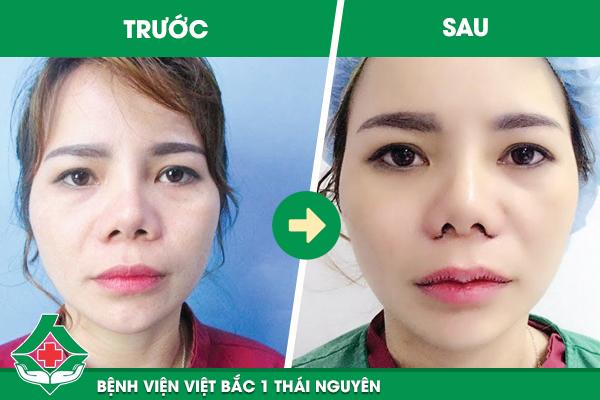 Khách hàng mới phẫu thuật làm môi trái tim tại Bệnh viện Việt Bắc đã nhìn thấy rõ dáng môi thay đổi đáng kể