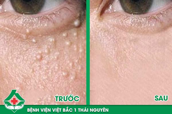 Bác sĩ Bệnh viện Việt Bắc 1 tư vấn phương pháp trị mụn thịt bằng Laser CO2