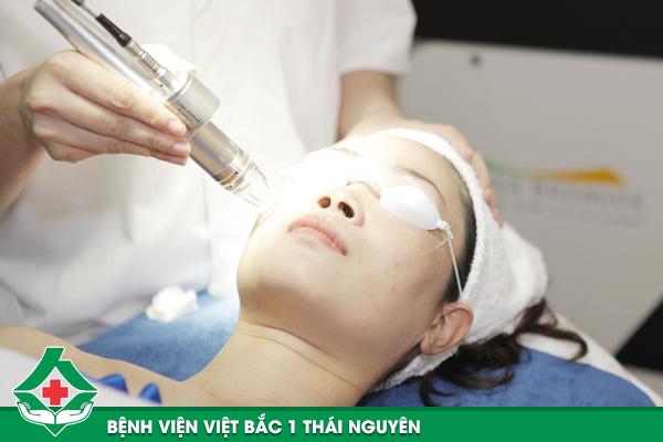 Điều trị nám da bằng công nghệ Laser Toning