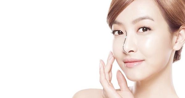 Phẫu thuật nâng mũi Hàn Quốc – Mũi đẹp chuẩn sao hàn chỉ với 60 phút thumbnail