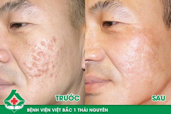 Kết quả điều trị sẹo lõm tại bệnh viện Việt Bắc 1