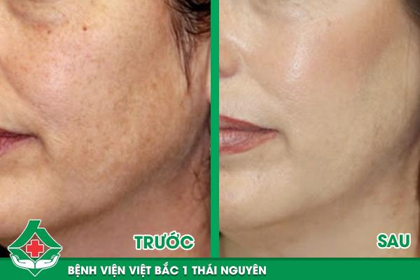 Hình ảnh khách hàng trước và sau điều trị tàn nhang tại Bệnh viện Việt Bắc 1