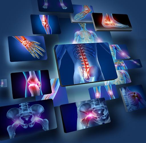 Các bệnh lý thường gặp ở cơ xương khớp