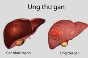 Ung thư gan và những điều cần biết thumbnail
