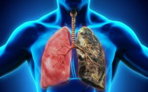 Những điều cần biết về ung thư phổi thumbnail