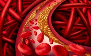 Bệnh mỡ máu và những điều cần biết thumbnail