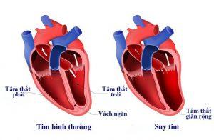 Những điều cần biết về bệnh suy tim thumbnail