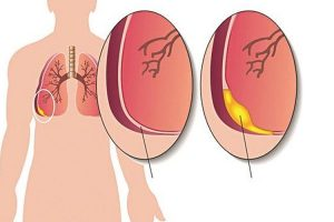 Tràn dịch màng phổi và những điều cần biết thumbnail