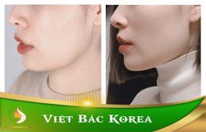 Tiêm Botox thon gọn hàm uy tín tại Thái Nguyên thumbnail