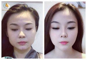 Botox thon gọn hàm – Gìn giữ sắc xuân thumbnail